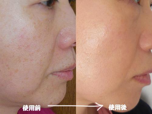 エクセル スキンティントセラム【ST03:普通~やや明るめの黄味の少ない肌色】の使用前使用後の肌