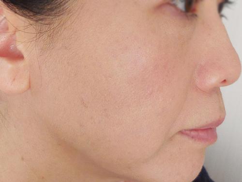 コフレドール タッピングライトファンデーション(明るめ~標準的な肌の色)を塗ってみた使用後の肌・ビフォーアフター