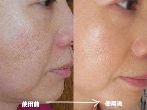 リソウ クリアパウダーファンデーション LK 顔に塗ってみた使用前使用後・ビフォーアフター